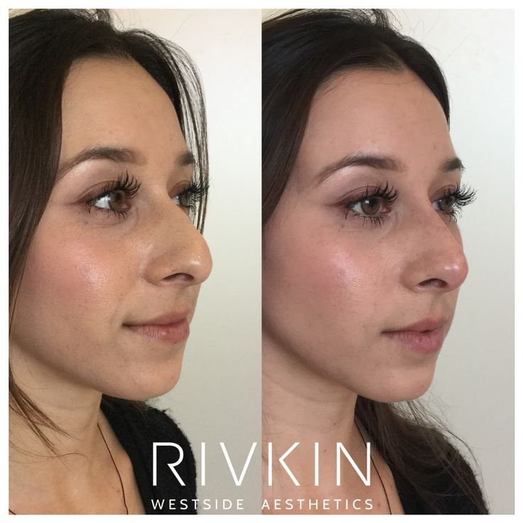 side angle of before and after nonsurgical nose job with