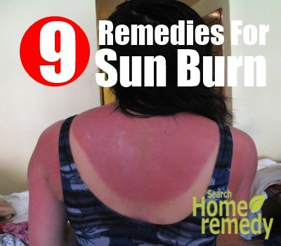 9 Various Home Remedies For Sun Burn