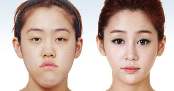 Young Koreans Before and After Extreme Plastic Surgery (50 pictures)