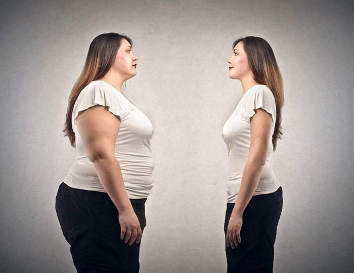 Weight loss surgery washington