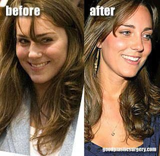 Kate Middleton Plastic Surgery ....:::::::.... Plastic Surgery Tips, news ... se...