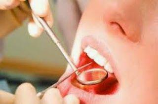 """""""Τέλος"""" στα σφραγίσματα στα δόντια με τη θαυματουργή ουσία Keep32"""