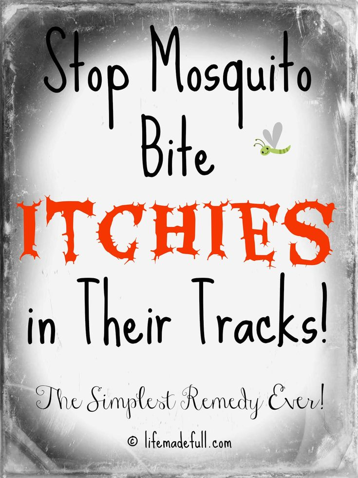 Got mosquitoes? All you need is this ONE thing to get stop mosquito bite itchies once and for all!