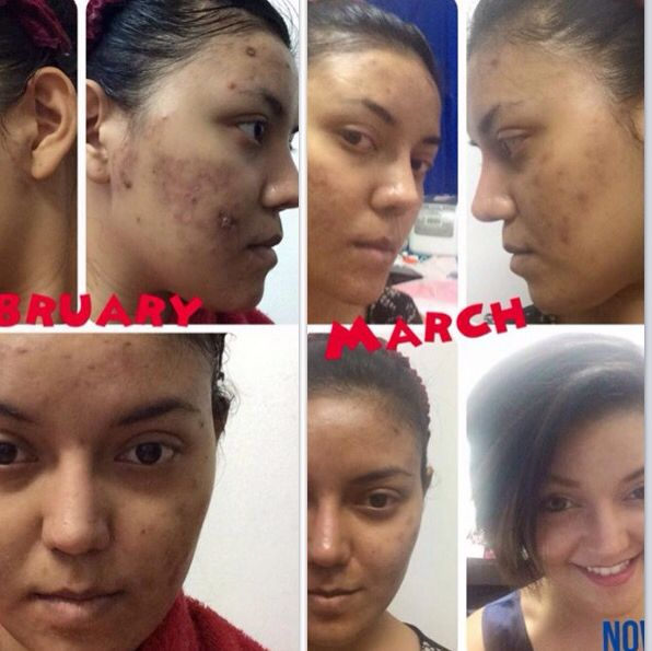 Treating Acne and Scars kicks Pro Active to the Curb www.dacusageless.jeunesseglobal.com