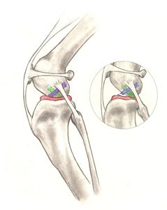 Figure 1. Illustration of the anatomy of the dog's knee: Blue = cranial cruciate ligament; Red = meniscus; Green = caudal cruciate; the insert shows a ruptured cranial cruciate ligament (also note that the shinbone is displaced forward and is crushing the meniscus)