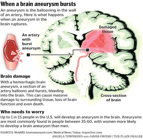 31 best cerebral aneurysm images on pinterest, Cephalic Vein