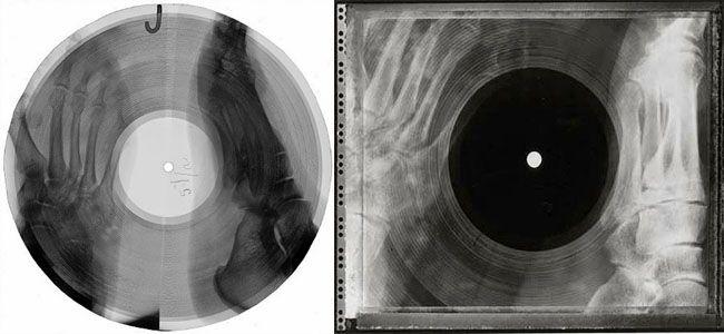 Como russos apaixonados por música transformaram raios-x em vinis piratas