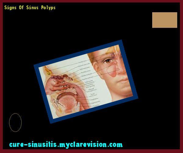 Signs Of Sinus Polyps 090510 - Cure Sinusitis