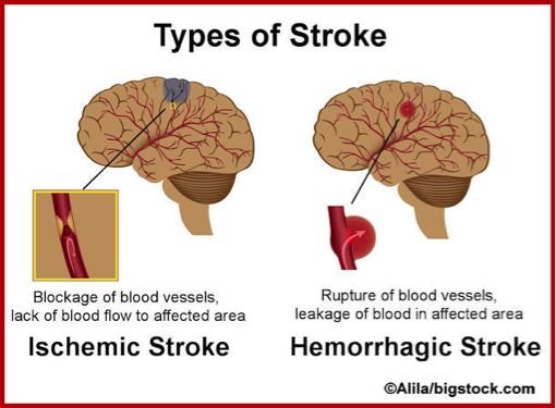 a study on the causes and recovery from stroke A swallowing disorder called dysphagia often occurs as a result of stroke dysphagia may occur in up to 65 percent of stroke patients  cause a violent cough, but.