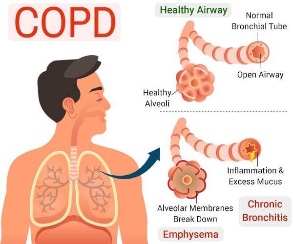 ما هو مرض الانسداد الرئوي المزمن Copd هو المصطلح المختصر لمرض الانسداد الرئوي المزمن يصيب 5 من السكان حوالي 12 مليون شخص وهو رابع سبب Bronchial Mucus Copd