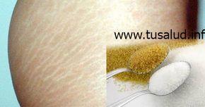 TuSalud.Info: Cómo eliminar estrías naturalmente con azúcar.