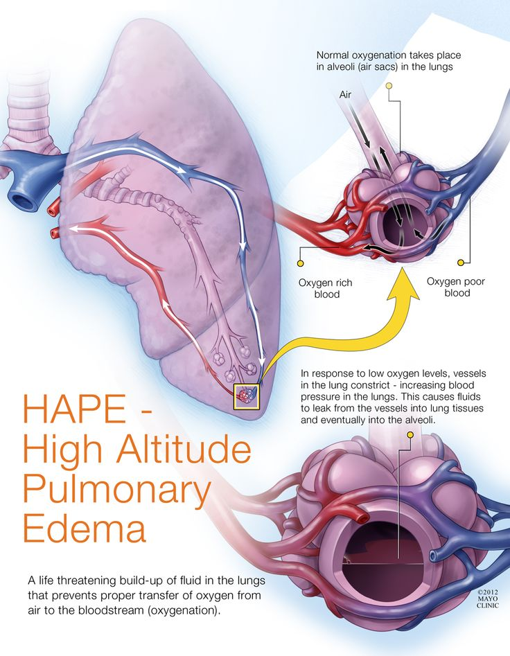 HAPE – High Altitude Pulmonary Edema; Do to being in high altitudes the pressure on the body can cause a serious problem.