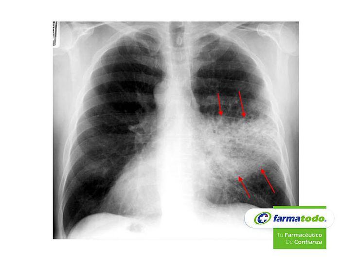 TIPS FARMATODO TE DICE ¿Cómo se diagnostica la Neumonía? El médico puede solicitar una Radiografía de tórax pues en ella se ven signos radiográficos característicos., también puede solicitar Cultivos. El aislamiento en la sangre, esputo u otros tejidos da el diagnóstico definitivo del microorganismo causante. Si una neumonía persiste a pesar del tratamiento, puede ser necesaria una fibrobroncoscopia (estudio directo del árbol bronquial con un tubo flexible de fibra óptica)…