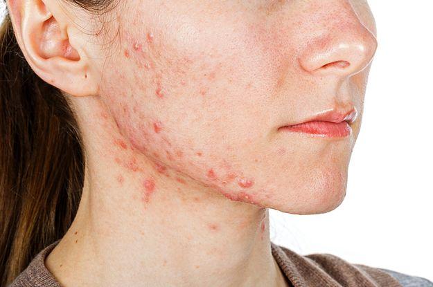 behandling af tør hud