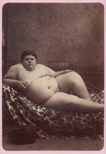 """The Fat Man""Circus Freak, Arrepentido, Charles Eisenmann, Fat Photos, Human Zoos, Chaunci Morlan, Stupid Human, Obesity Photos, Fat Man"
