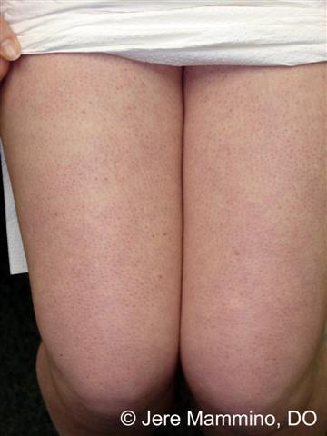 Best Natural Treatment For Keratosis Pilaris
