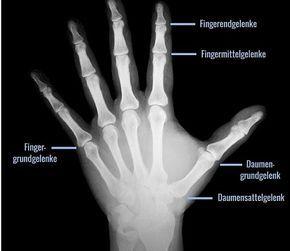 Anatomie der Hand: arthrosegefährdete Fingergelenke