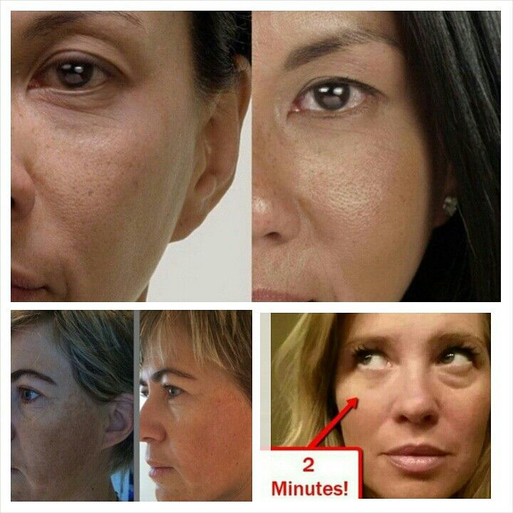 Jeneusse anti aging skin care products! Email me at mickey110105@.com for more information on this ground breaking business!