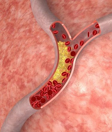 Is Inflammation, Not LDL Cholesterol, the Real Culprit Behind Heart Disease?