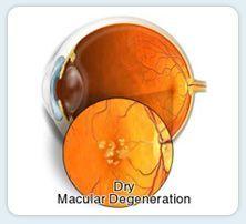 Dry Macular Degeneration   www.macfarlaneoptometrist.com.au/Macular-Degeneration