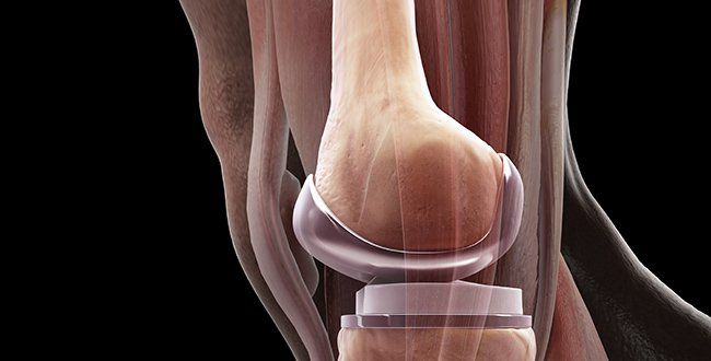 9 Things No One Ever Tells You About Getting A Knee Replacement - people who strengthen the muscles around their knees have a faster, easier recovery than those who are weaker going into the surgery (inside quad muscle, biking)....