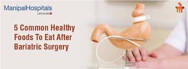 Bariatric Surgery is achieve by reducing the size of stomach with a gastric band or through removal of portion of stomach. The most common bariatric surgery procedures are gastric bypass, sleeve gastrectomy, adjustable gastric band.