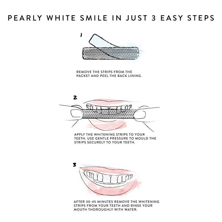 Painful Teeth Whitening Products It Works #teethwh…