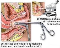 Acuerdo Vital - La Biopsia: Las biopsias de cuello uterino, más frecuentemente realizadas, pueden tomarse de la parte externa (Biopsia de exocérvix) que es la que se muestra en la lámina; o de la parte interna (Biopsia de endocérvix o de canal endocervical). https://www.facebook.com/pages/ACUERDO-VITAL/59124403603