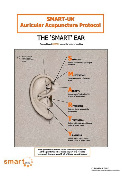 12 best auriculotherapy images on pinterest acupressure auricular acupuncture google search fandeluxe Gallery