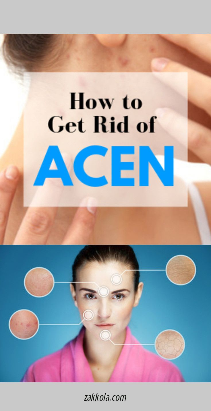 Find out about acne. Check the webpage to read mo…