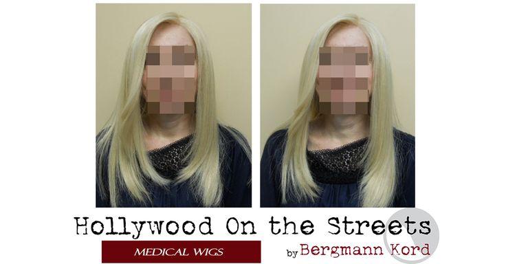 Κατασκευή HOS-2 με δικά σας μαλλιά ! Η Τεχνική HOS-2 επιτρέπει την κατασκευή hair system με μαλλιά προερχόμενα από τον ίδιο τον Ογκολογικό Ασθενή, με σκοπό την αποκατάσταση της εμφάνισης των μαλλιών, μετά την απότομη αλλαγή την οποία προκαλεί η χημειοθεραπεία ή η ακτινοβολία.