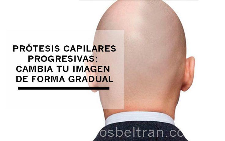 Si tienes una alopecia muy pronunciada ¡cambia tu imagen de forma gradual con las prótesis capilares progresivas! ¡COMPARTE!