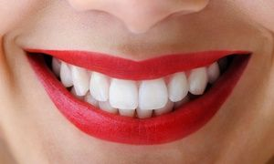 Groupon - $ 136 for a Zoom! Teeth-Whitening Treatment from Dr. Pyle with Orlando Dental Group (a $500 Value) in Sky Lake. Groupon deal price: $136