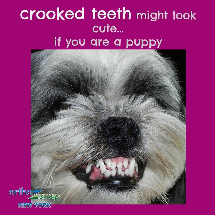 NOW you can #StraightenYourTeeth without unsightly braces. #OrthoSnap - today's TRUE and ONLY metal braces alternative. #OrthoSnapNewYork | #Manhattan and #Brooklyn | 1.844.678.4676 | http://www.OrthoSnapNY.com/ | #ClearBraces #InvisibleBraces #AdultBraces #StraightTeeth #TeethStraightening #InvisalignAlternative #braces #Transparent Braces #TeethAligners #invisalign #NewYork #NYC #smile #teeth #dentist #orthodontist #BeautifulSmile #ConfidentSmile #PerfectTeeth #ClearAligners #CrookedTeeth