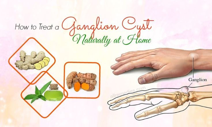 Can You Get Rid Of A Ganglion Cyst Naturally