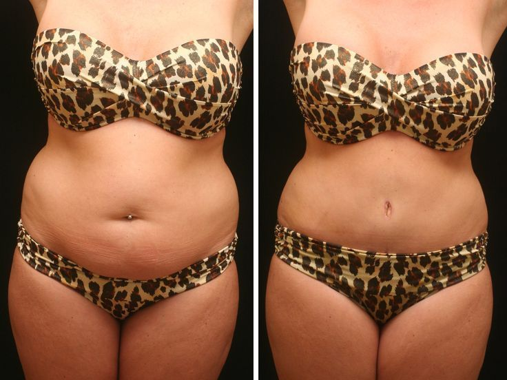 Liposuction (large, medium or small) The surgical suctioning of fat deposits fro