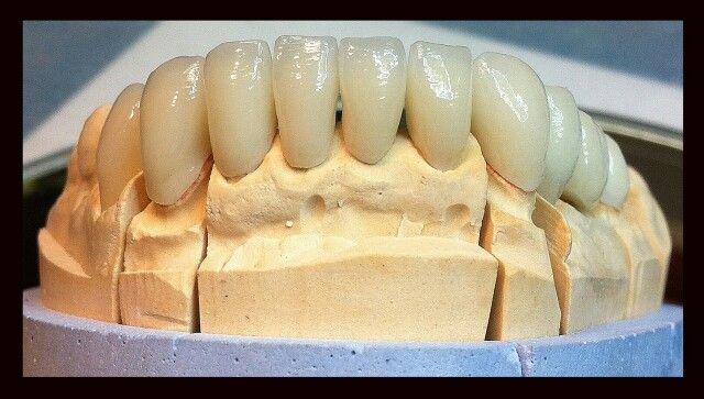 Art dentaire, par S. Levrey. Tout K prothèse, Paris