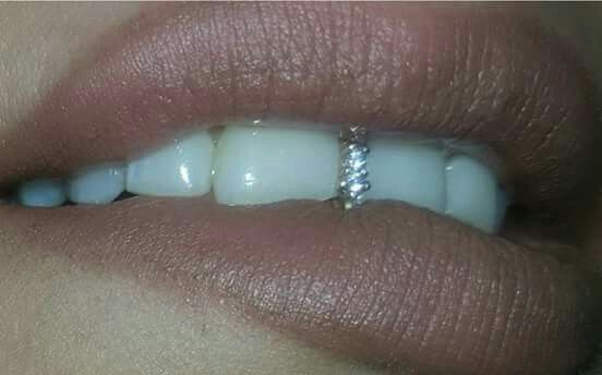 A tooth gap filled with diamonds