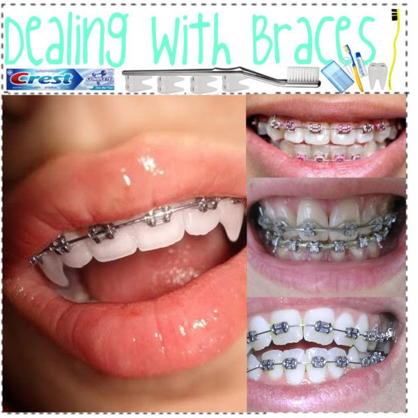 Dealing With Braces!