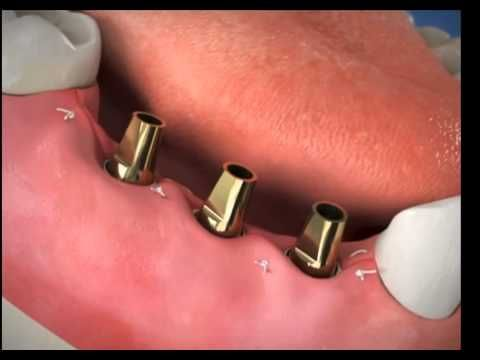 Oral surgery dental specialist can analyze and give surgical treatment of dental wounds. The fundamental point of the dental specialist is not just to treat issues identified with jaw and teeth, additionally makes amicability amongst capacity and facial appearance.