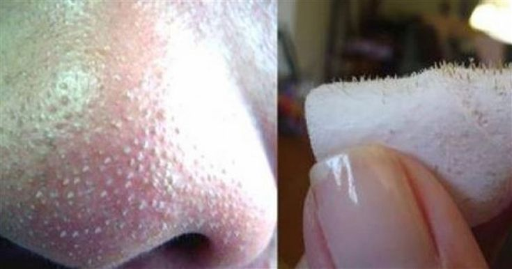 Simple Way to remove blackheads: 1 tbsp sea salt 1/2 tsp lemon juice 1 tsp water After you've gathered those three simple ingredients, mix them together in a bowl and apply the mixture to your face. Then massage the mixture into your skin in circular motions for 2-4 minutes. Give it a rinse and then wash your face with your regular cleanser. Pro tip: don't do this more than twice a week! This trick works best in moderation.