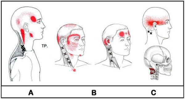 Cinque emicrania provoca dolore causa è