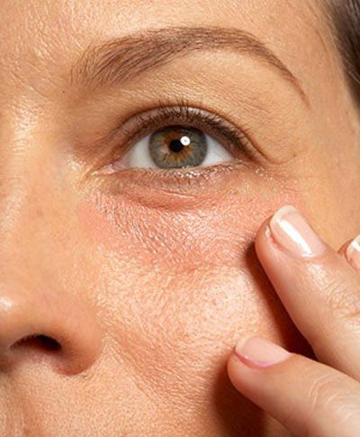 How To Use Almond Oil To Reduce Dark Circles-stylecraze.com