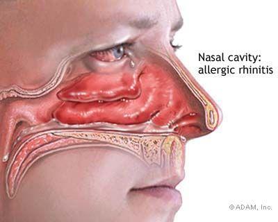 Allergic Rhinitis - Symptoms, Diagnosis, Treatment of Allergic Rhinitis - NY Times Health Information