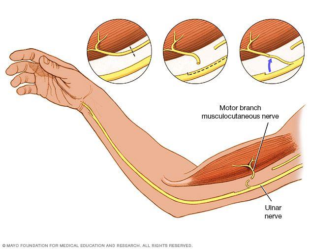 355 best brachial plexus injury info images on pinterest for Symptoms of motor neuron disease mayo clinic