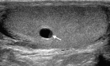 US testicle - simple cysts is based on the characteristic signs of being  anechoic with thin margins. Sometimes testicular cysts contain echoic material which is mobile when the patient moves or fixed. If the material is mobile, the cyst is always benign; if it is fixed, the differential diagnosis should include cystic neoplasm. the most common is cystic teratoma.