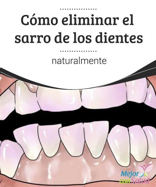Cómo eliminar el sarro de los dientes naturalmente   Millones de personas sufren de sarro en los dientes. Así es, no eres el único que padece por la acumulación de restos de comida en sus piezas dentales.