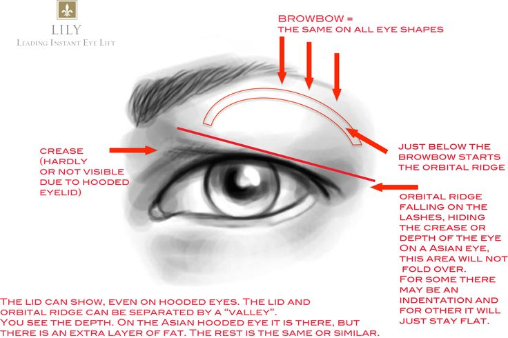 hooded eye lids? | Hooded_Eye_Illustration_Lily_Leading_Instant_Eye_Lift.jpg