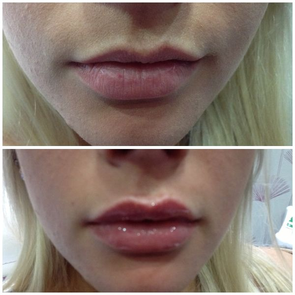 Lip Enhancement using Juvederm Ultrasmile. Gentle injections are carried out to plump the lips. Anaesthetic cream is applied first. Treatment carried out at Spa@Bannockburn. A luxury Medispa or skin Spa providing anti-wrinkle treatments. Excellence on Facial Aesthetics!