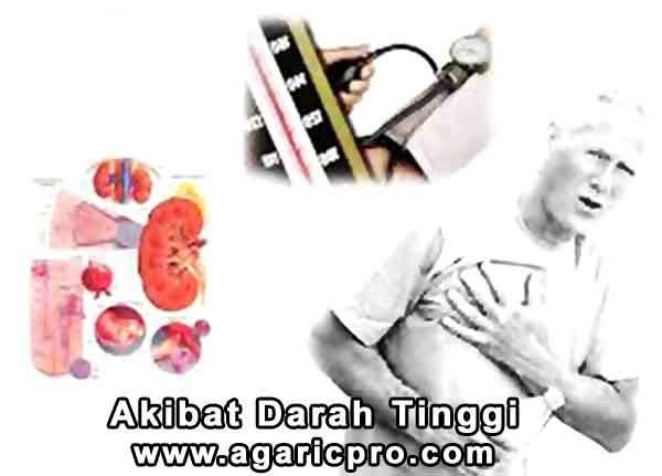 Akibat Darah Tinggi: http://www.agaricpro.com/akibat-darah-tinggi/